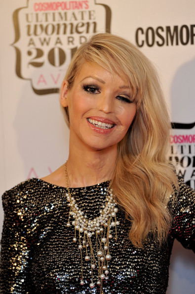 Latest On Katie Piper http://tetranix.com/administrator/katie-piper-modelling-pictures&page=5