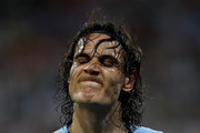 Edinson Cavani of Uruguay reacts after coming off with an injury during the 2018 FIFA World Cup Russia Round of 16 match between Uruguay and Portugal at Fisht Stadium on June 30, 2018 in Sochi, Russia.