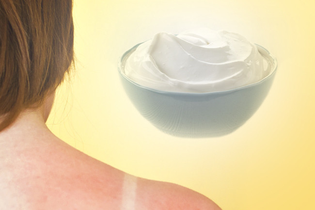 Tuesday Tip: Natural Sunburn Relief