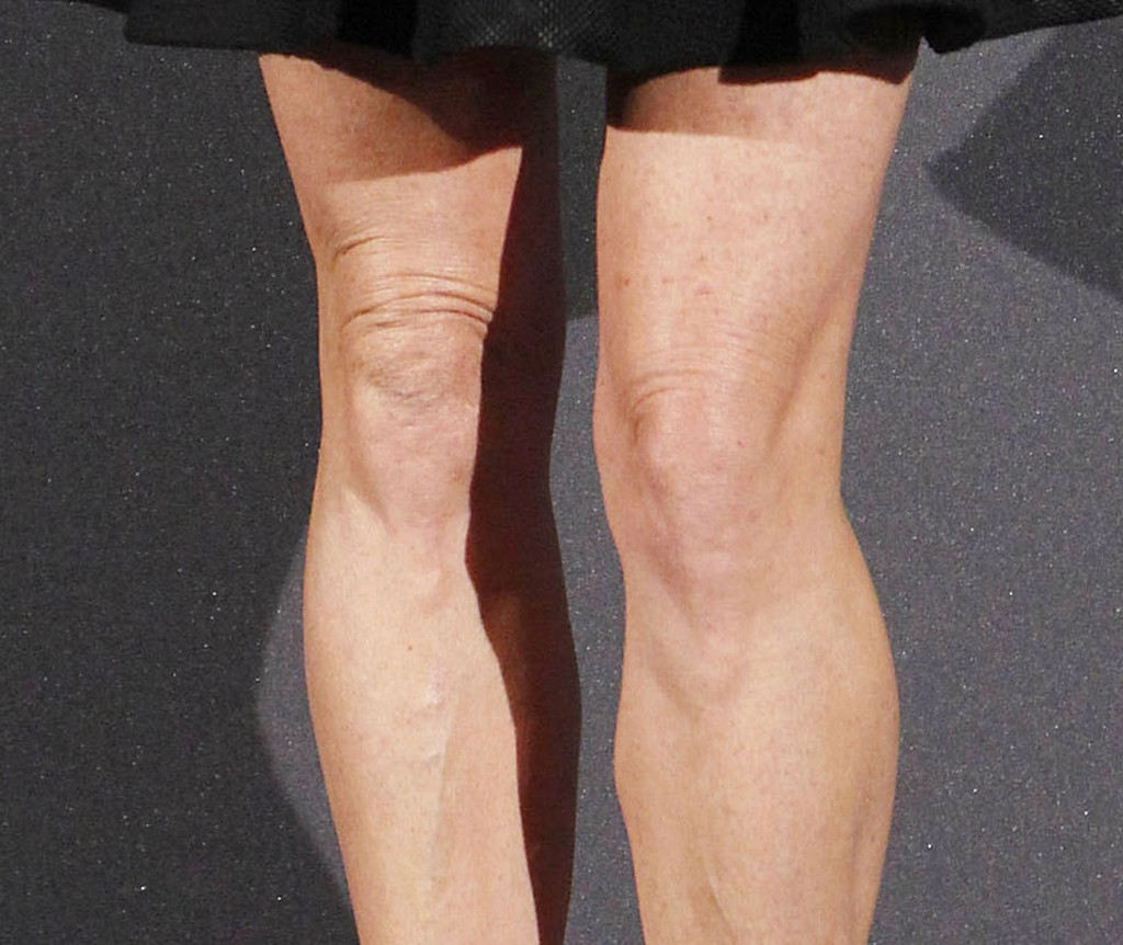 how to get rid of knobby knees
